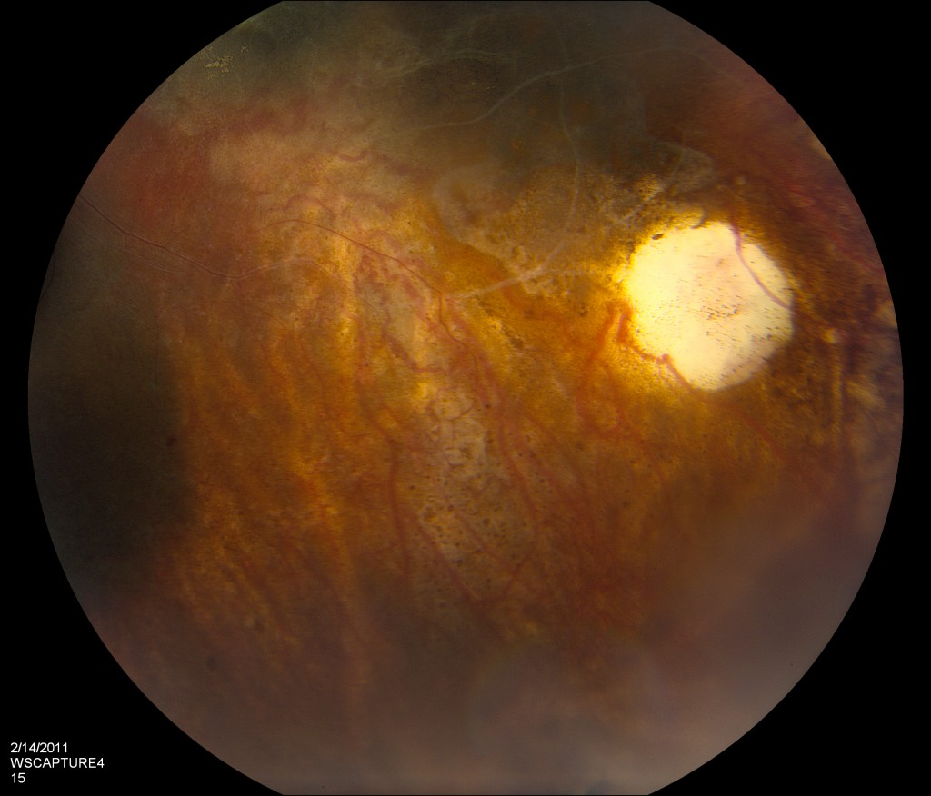 The pupil, the tumors and the larger blood vessels.